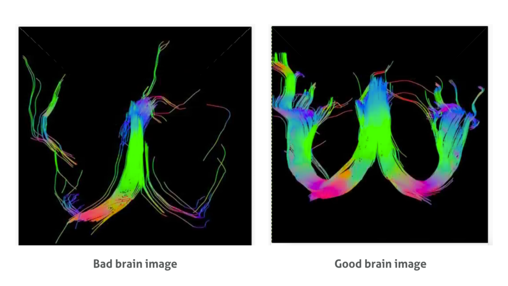 good and bad neuro brain image